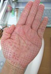 hand_5.jpg